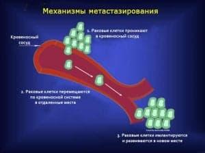 Механизмы метастазирования опухолей