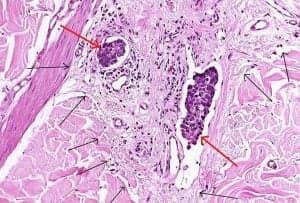 Прорастание злокачественной опухоли в окружающие ткани. Красными стрелками указаны конгломераты опухолевых клеток, ограничивающие лимфоток