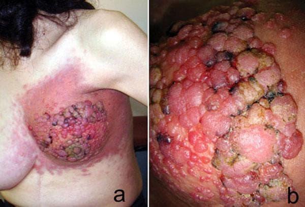 Метастазы в кожу, первичная опухоль - аденокарцинома желудка