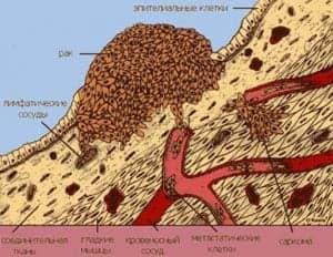 Типичные пути метастазирования опухолей