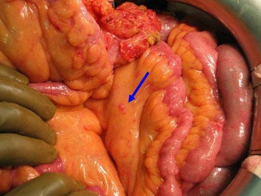Рак брюшины - наличие раковых клеток, рассеянных по брюшине. На фото можно увидеть тонкую кишку, покрытую блестящей брюшиной с несколькими небольшими розовыми имплантациями раковых клеток (обозначены синей стрелкой)