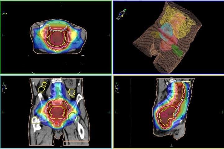 Колоректальный рак (рак кишечника)