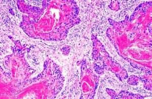 Описание плоскоклеточного рака его лечение