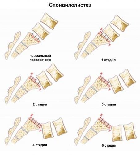 Лечение спондилолистеза в Центре нейрохирургии Клиники Спиженко