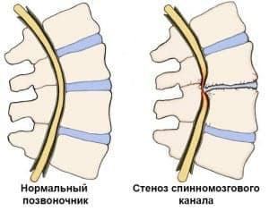 Хирургическое лечение хронической боли в спине