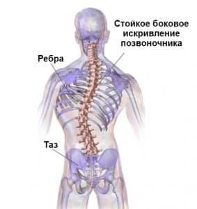 Сколиоз : лечение деформации позвоночника хирургическим путем