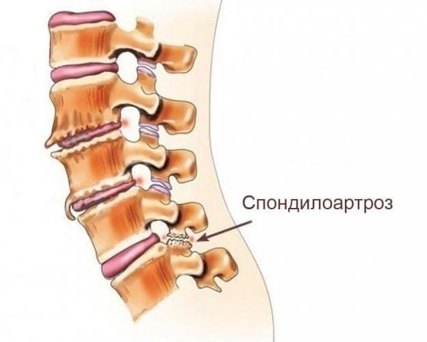 Боль в спине - симптоматический критерий артроза