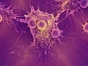Таргетная терапия рака в Киеве