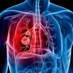 Лечение рака лёгких