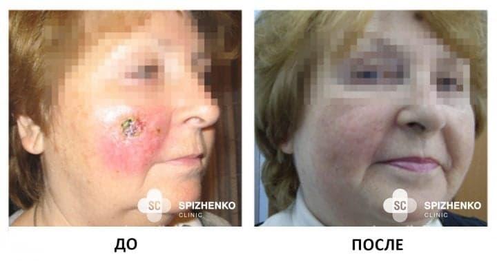 Современное лечение рака кожи