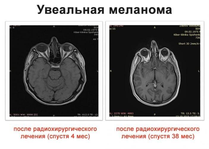 лечение опухоли глаза в Клинике Спиженко