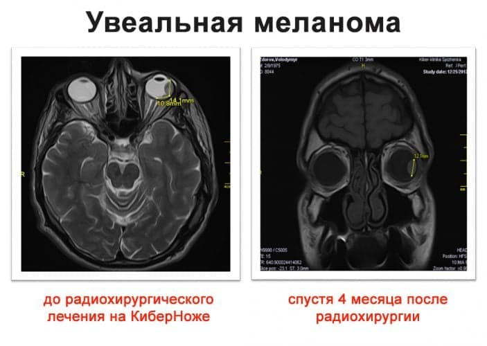 Рак глаза - причины, признаки, симптомы и лечение рака глаза
