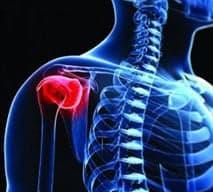 Опухоли костей, суставов и мягких тканей