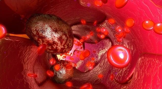 Метастазы в крови
