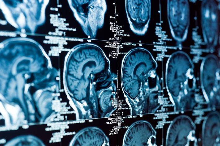 Як визначити пухлину мозку? - Клініка Спіженко
